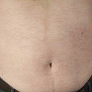 Teufelskreis Übergewicht - Der gesellschaftliche Druck erschwert das Abnehmen